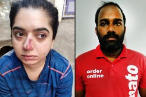 Kamya Panjabi and Many Other Celebrities Take the Zomato Assault Case to Twitter After Parineeti Chopra.